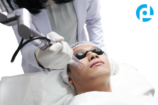 Photo Laser untuk perawatan wajah berjerawat, kusam, berminyak, pori-pori besar dan flek hitam