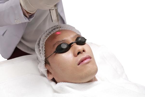 Skin Resurfacing berguna untuk mengatasi jerawat, luka akibat bekas jerawat, pori-pori besar, kulit wajah kusam dan berminyak serta tektur wajah kasar