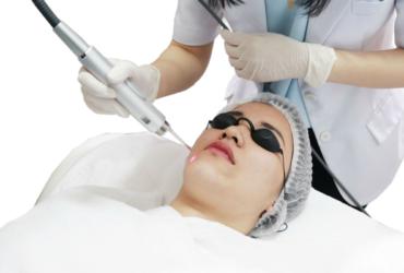 Collagen Remodelling Laser