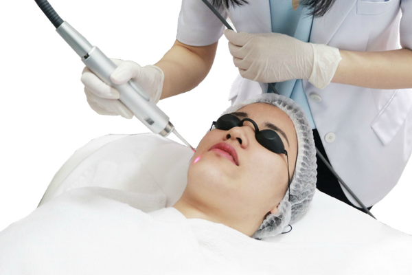 Collagen Remodelling Laser