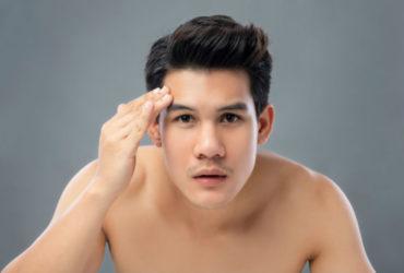 masalah kulit wajah pria