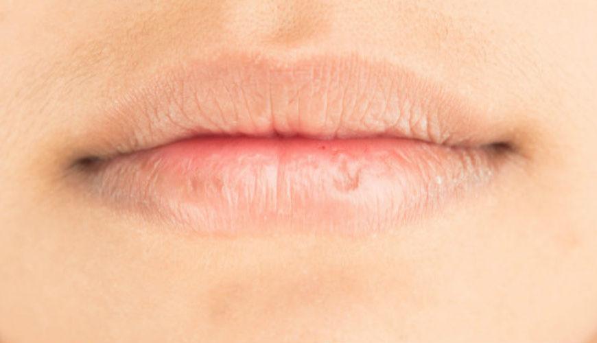 cegah bibir kering